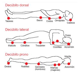 zonas de escaras o úlceras de presión